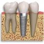 Portal do Implante Dentario