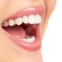 Clareamento Dental a Laser ? Curitiba