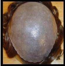 Fotos de Careca nunca mais! prótese capilar em nova iguaçu! 2