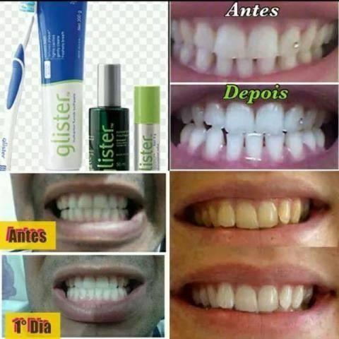 Creme Dental Clareador Importado Em Curitiba Outros Servicios