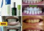 Creme Dental Clareador - IMPORTADO